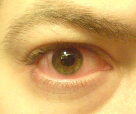 szem drog szem plusz olyan emberek, akik javították a látásukat